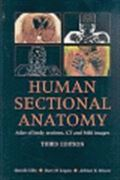 image of Human Sectional Anatomy: Atlas of Body Sections, CT and MRI images