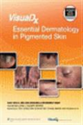 image of VisualDx: Essential Dermatology in Pigmented Skin