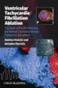 image of Ventricular Tachycardia / Fibrillation Ablation: The State of the Art based on the VeniceChart International Consensus Document