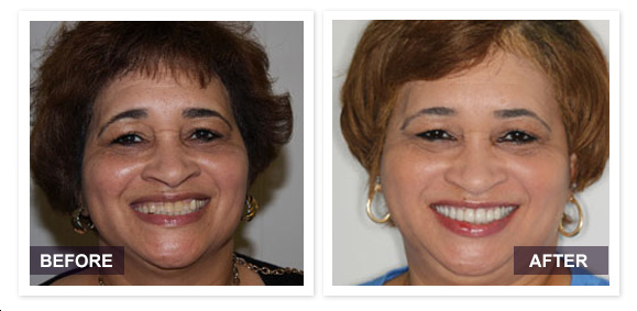 Archpoint Implant Dentistry - Dallas, TX