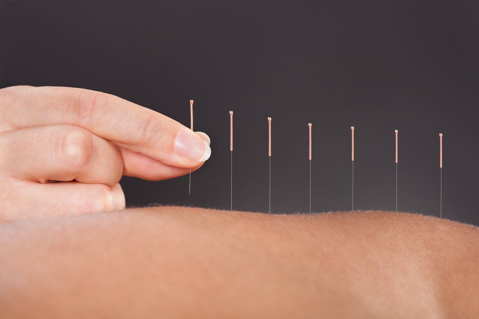 Acupuncture and Herbal - Shelley Tsai - Richardson, TX