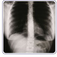 Altru's Interventional Radiology - Grand Forks, ND