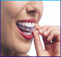 If you are looking for Invsialign clear braces then this link to find out everything you need to know about nvsialign clear braces at Eternal Smiles. Don't wait click here now to find out more.