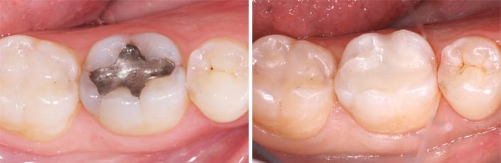 4 amalgam removal safely