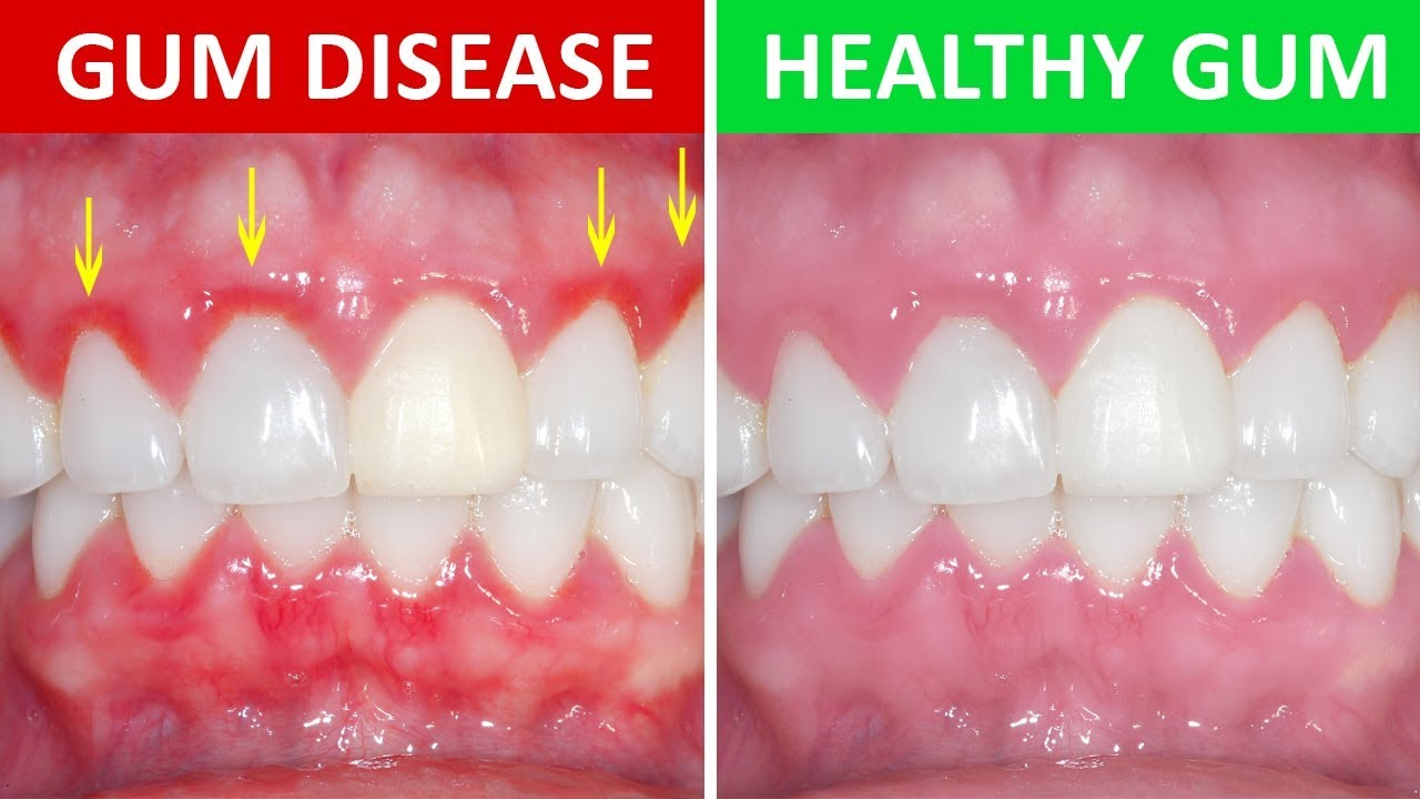 "periodontitis treatment ""receding gums"" periodontitis treatment what's gum disease ""gums bleeding"" ""painful gum"" ""gum cleaning cost"" ""most effective treatment gum disease"" ""receding gums laser treatment birmingham"" ""if molars teeth moving and hurting"" periodontal treatment bleeding gums treatment ""what is gum disease"" ""how to cure gum disease"" abscess on gum cure for gingivitis gum disease ""teeth bleeding"" ""gum care"" ""gum problem"" ""how to treat gums"" ""my teeth are wobbly due to peridontal disease"" ""gum disease treatment places in birmingham"" ""my gums come away from my teeth"" ""periodontist birmingham uk"" periodontal disease ""periodontal"" ""gum disease treatment cost"" ""laser gum disease treatment"" ""gum clinic near me"" ""gums is really hurting"" ""pain and inflammation in gums"" periodontal disease treatment ""gum disease"" ""gum disease treatment"" ""gum treatment"" gum disease dentist ""periodontal laser treatment"" ""gum pain"" ""teeth and gums hurt"" ""laser dentist birmingham"" ""periodontitis of the gums"" ""pyhyorrhea"" periodontitis advanced periodontal disease ""bleeding gums"" gum abscess ""treatment of gum disease"" ""periodontal treatment cost"" ""laser gum surgery"" deep clean teeth ""gum clinic"" ""gum problems"" ""laser gum cleaning birmingham uk"" ""lazer treatment for receding gum westmidlands"" periodontal gum disease periodontal dentist ""how to treat gum disease"" ""deep teeth cleaning cost"" ""severe gum disease"" ""how to get healthy gums"" ""how to help sore gums"" ""how to remove gum disease"" ""i have severe gum disease"" ""options if you have loose teeth and gum disease"""