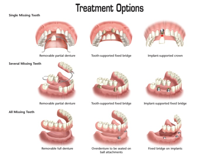 Dental Implants, best place to get implants, best dentist for implants, dentist specializing in implants
