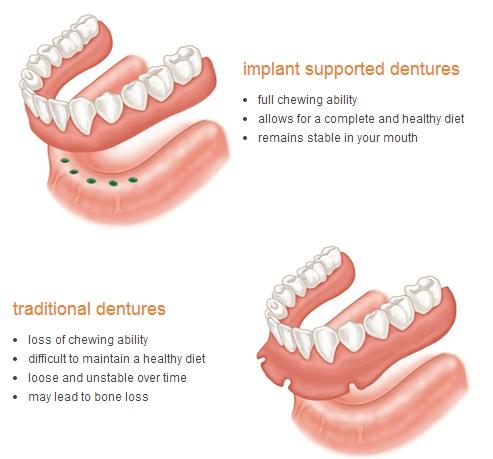 1. implant-denture