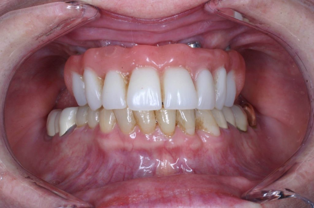 7 denture implants