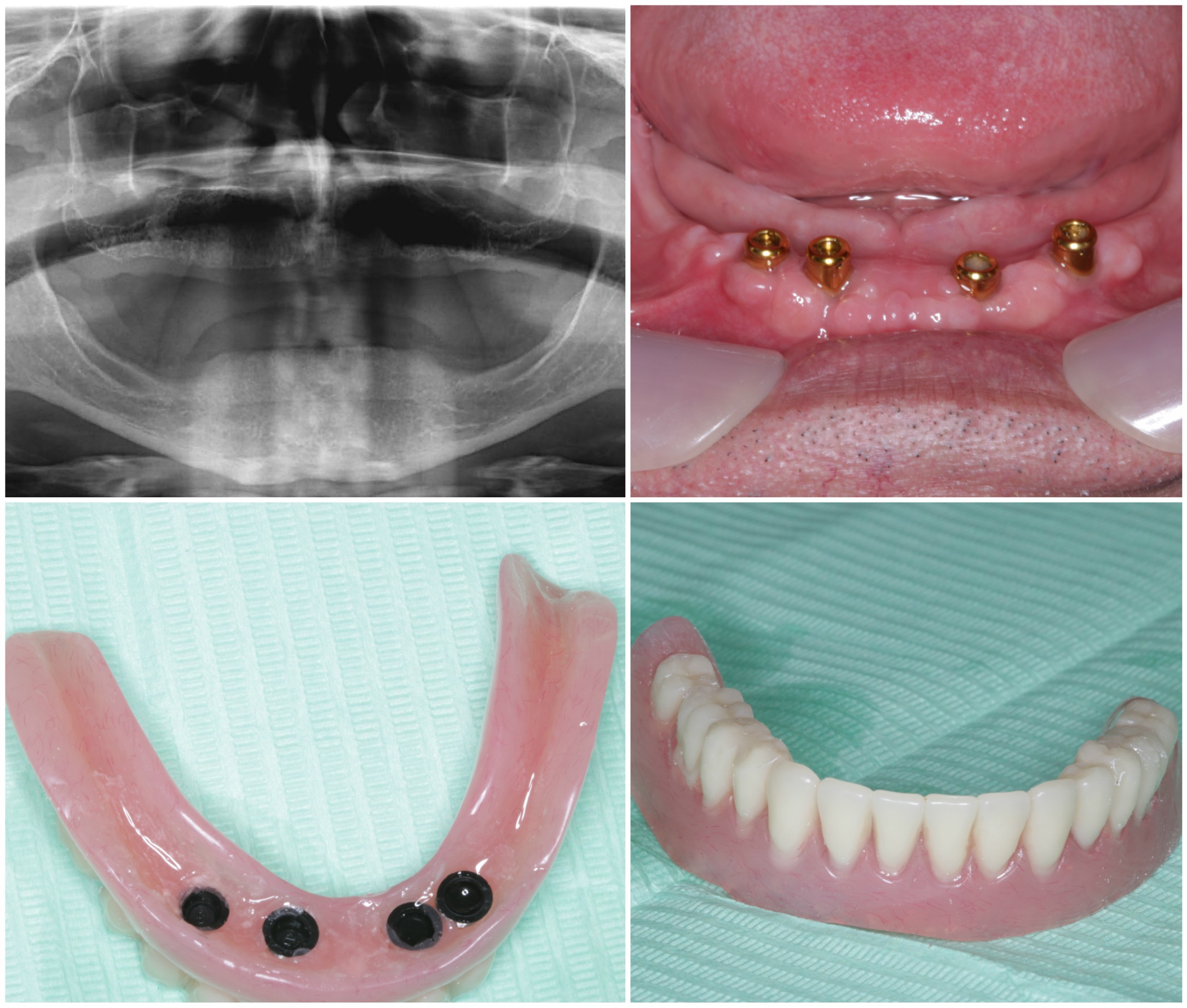9a denture implants
