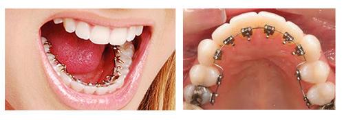 2 lingual-braces-500x500
