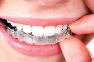 invisalign brace in mouth 3