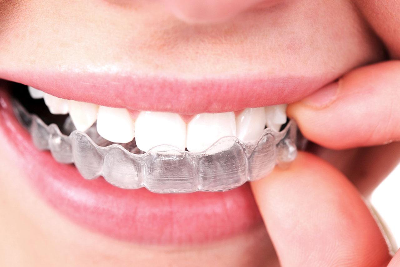 invisalign brace in mouth 3