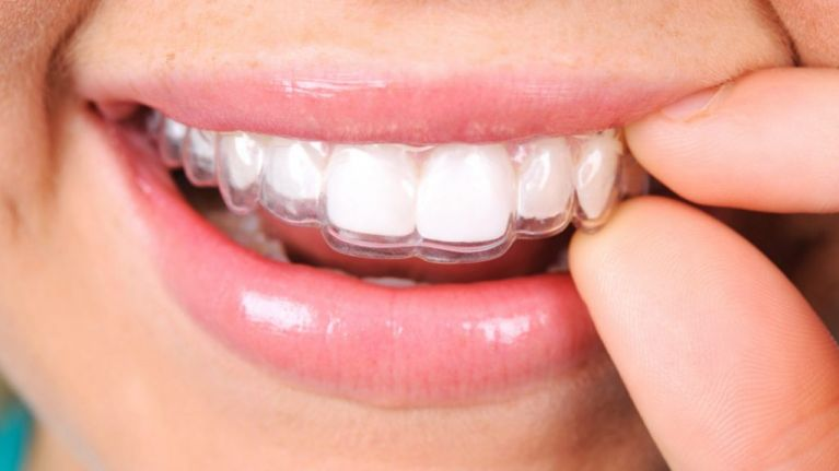 invisalign brace in mouth 5