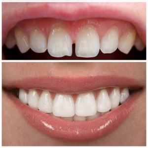 Cosmetic Dentist Offering Quality Smiles. Porcelain veneers or bonding for awesome smiles