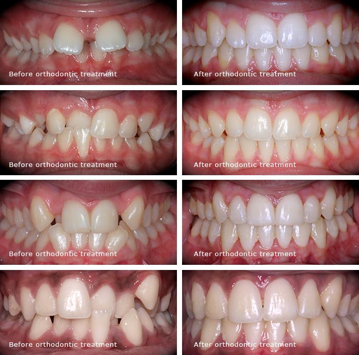 Best dentist, braces, implants, cosmetic dentist, best veneers dentist, implants