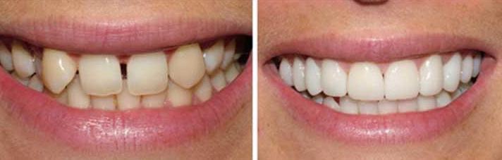 Teeth Veneers, Emax