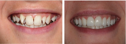 veneers, dental veneers, porcelain veneers, lumineers, composite bonding, bonding veneers