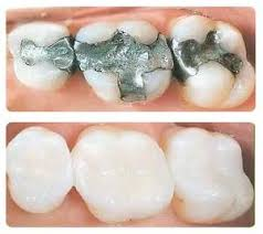 amalgam free silver free safely removed and replaced with safe BPA free and Fluoride Free Fillings
