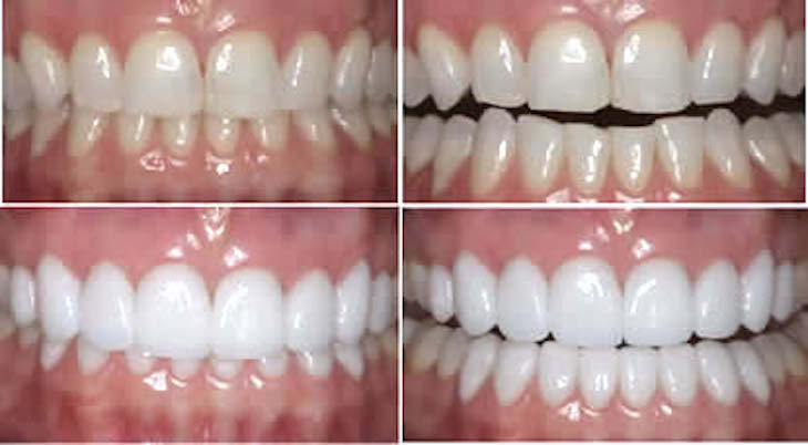 dental makeover teeth makeover cosmetic dentistry smile makeover mouth makeover veneers smile makeover cosmetic smile makeover smile makeover dentist best smile makeover dentist full smile makeover smile makeover options one day smile makeover cosmetic dentistry options