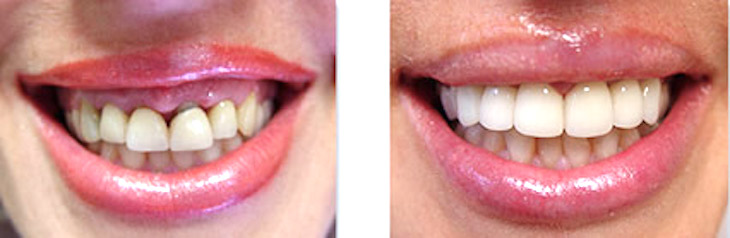 smile makeover dental makeover