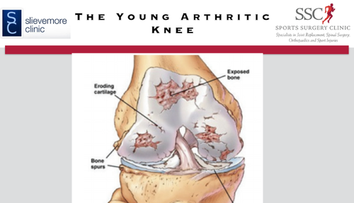 The Young Arthritic Knee