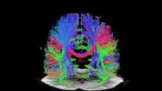 Emerging neurotech + a few lofty goals