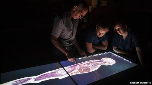 Virtual cadavers coming right up!
