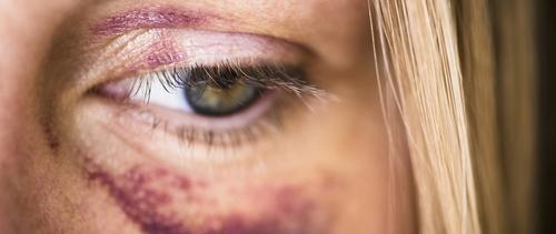 Violences faites aux femmes : l'horreur en 10 chiffres