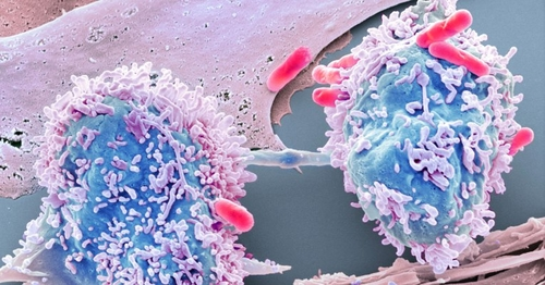Using data science to beat cancer