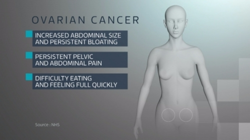 Ovarian Cancer- do you know the symptoms?