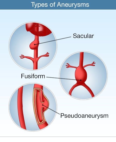 types of aneurysms