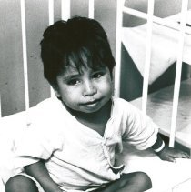 Image of Young Brazilian Patient