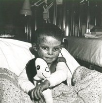 Image of Pediatric burn patient on SS HOPE