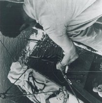 Image of Patient lifted aboard the SS HOPE on Voyage I 1960.