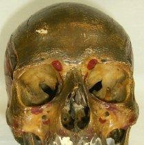 Image of 1994.1592 - Male Skull