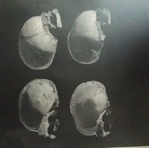 Image of 2010.39 - Photograph of lateral interior view of two skulls vertically bisected
