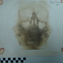 Image of 2010.39 - Photograph of x-ray of skull, anterior view, on paper