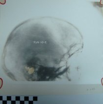 Image of 2010.39 - Photograph of x-ray of skull, lateral view, on paper