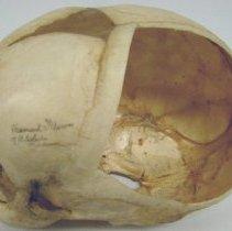 Image of 2010.39 - 3-5 Month Postnatal Skull with Parietal Window