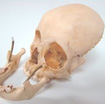 Image of 2010.39 - Disarticulated Child's Skull