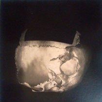 Image of Photograph of inferior view of a half a skull (frontal bone, Parietal bone,
