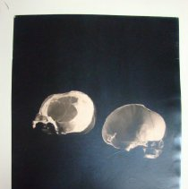 Image of 2010.39 - Photograph of lateral view of vertically bisected skull