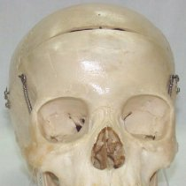 Image of 1995.06 - 10 Year Old Child Skull from the Collection of William Sutherland