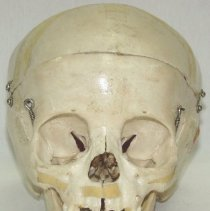 Image of 1995.06 - 5 1/2 Year Old Child's Skull from the Collection of William Sutherland
