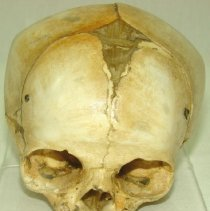 Image of 1995.06 - Infant Cranium from the Collection of William Sutherland