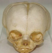 Image of 1995.06 - Fetal Skull from the Collection of William Sutherland