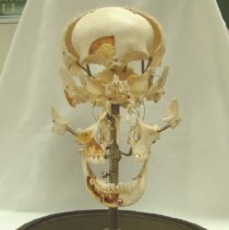 Image of 1995.06 - Disarticulated Skull from William Sutherland Collection