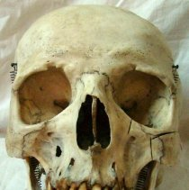 Image of 1986.1139 - Adult Human Skull