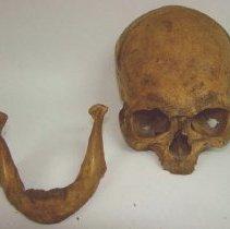 Image of 2007.63 - Skull and Jaw Bone