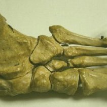 Image of 2014.08 - Human Foot and Ankle
